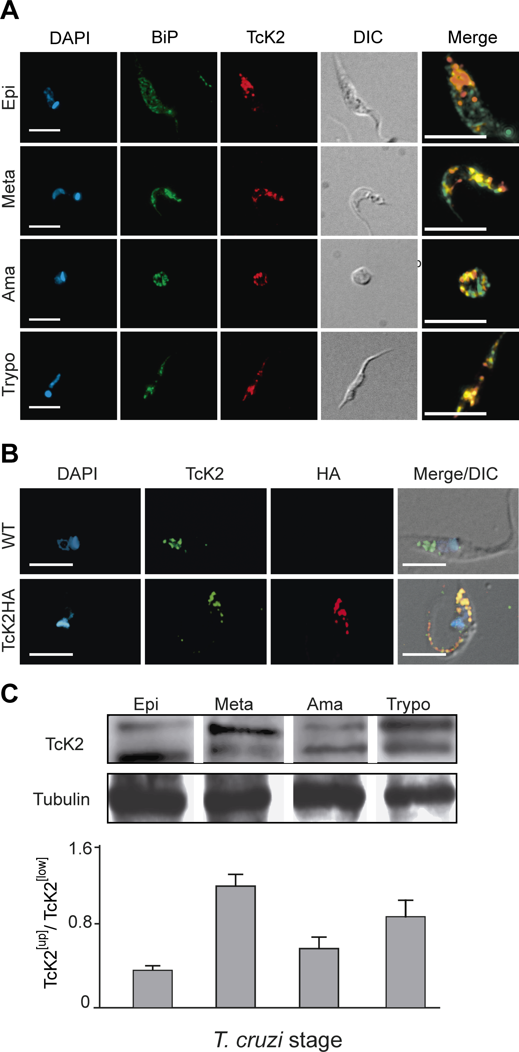 TcK2 is located in the endosomal compartment and is phosphorylated in non-proliferating parasite stages of <i>T. cruzi</i>.