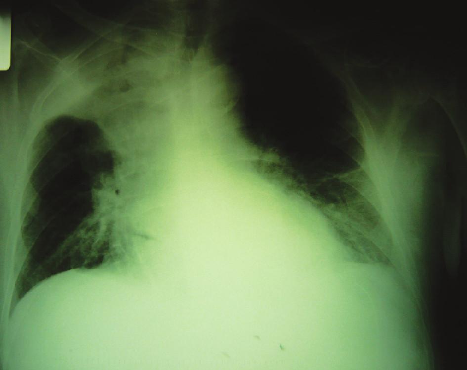 RTG nález tumoróznej masy v pravom hornom pľúcnom poli Fig. 5. RTG finding of a tumorous mass in the right upper lung region