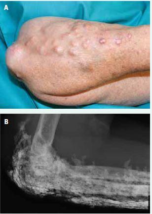 Podkožní kalcifikace kolem lokte a na předloktí (A) a v RTG obraze (B)