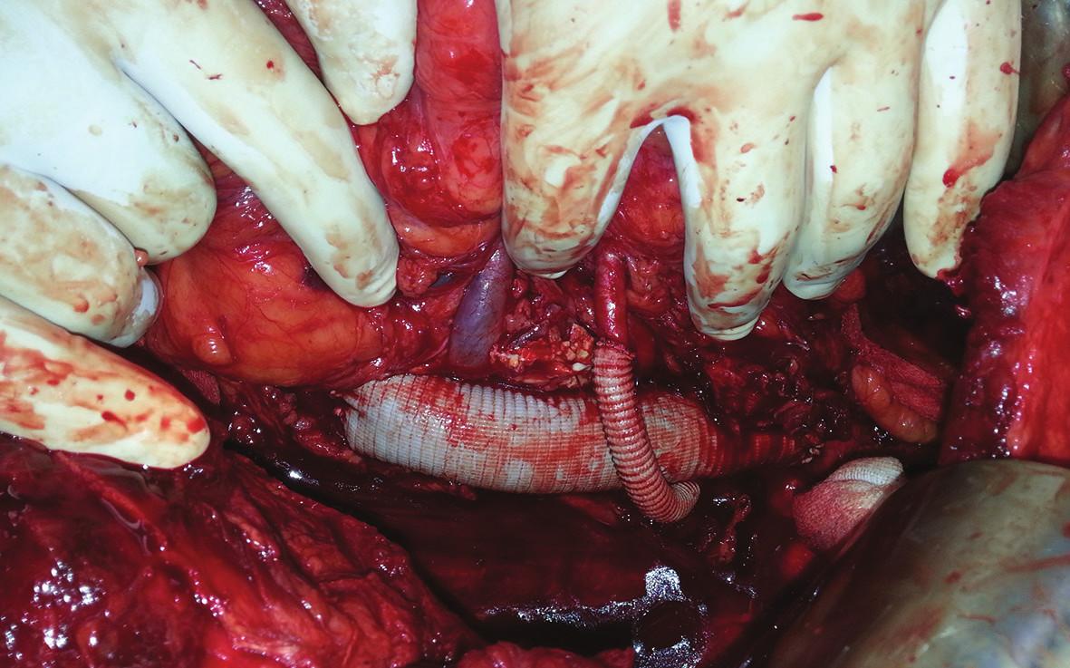 Náhrada aorty s byppasem na pravou i levou renální tepnu Fig. 7: Aortic replacement with bypass to right and left renal artery
