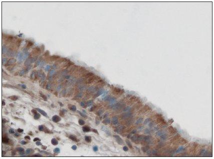 Významně větší nakupení reakčního produktu HBD- 3 v buňkách povrchového víceřadého cylindrického epitelu ve sliznici polypu s prokázaným Staphylococcus pyogenes aureus. Imunoperoxidázová reakce (DAB). Dobarveno hematoxylinem. Obj. 63x.