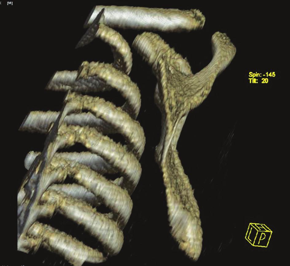 CT rekonštrukcia skapuly – bočný pohľad Fig. 3. CT reconstruction of the scapula – a lateral view