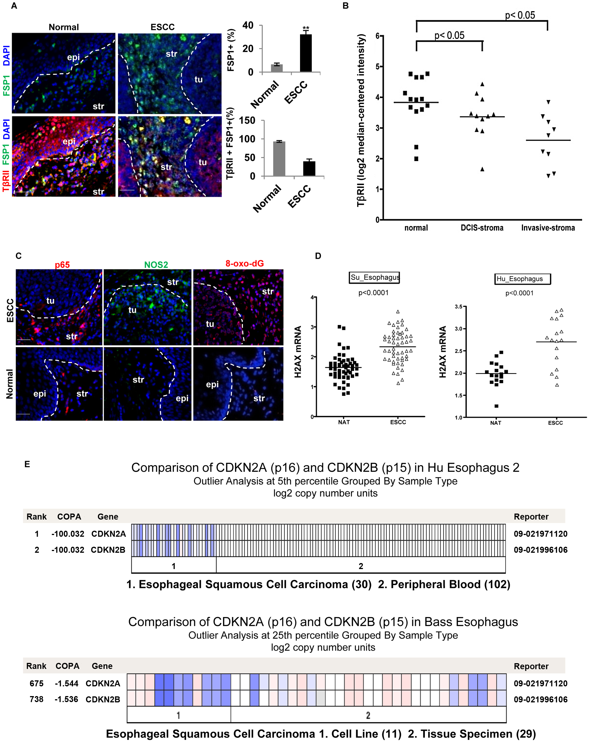 Reduced expression of TβRII in FSP1+ stromal cells, evident inflammation and DNA damage in human ESCC.