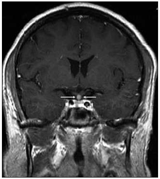 Kulovité zbytnění, infiltrace stopky hypofýzy při Langerhansově histiocytóze, se sycením kontrastní látkou. Koronární rovina zobrazení, T1 vážený MR obraz po aplikaci k.l.