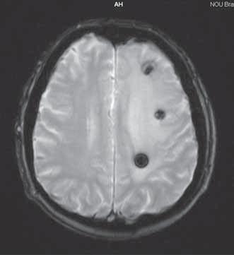 Magnetická rezonancia mozgu 3. 9. 2008.