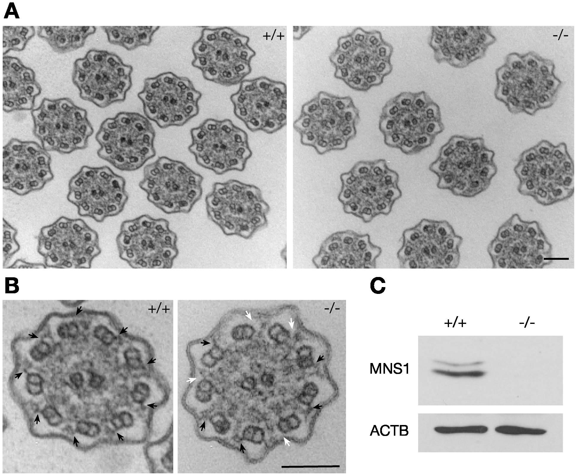Defects in outer dynein arms in <i>Mns1</i>-deficient tracheal cilia.