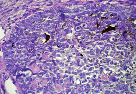 Solidní čep matrikálních buněk s rozptýlenými dendritickými melanocyty (nahoře) a okrouhlými eosinofilními stínovitými buňkami (dole) (HE, původní zvětšení 400x).