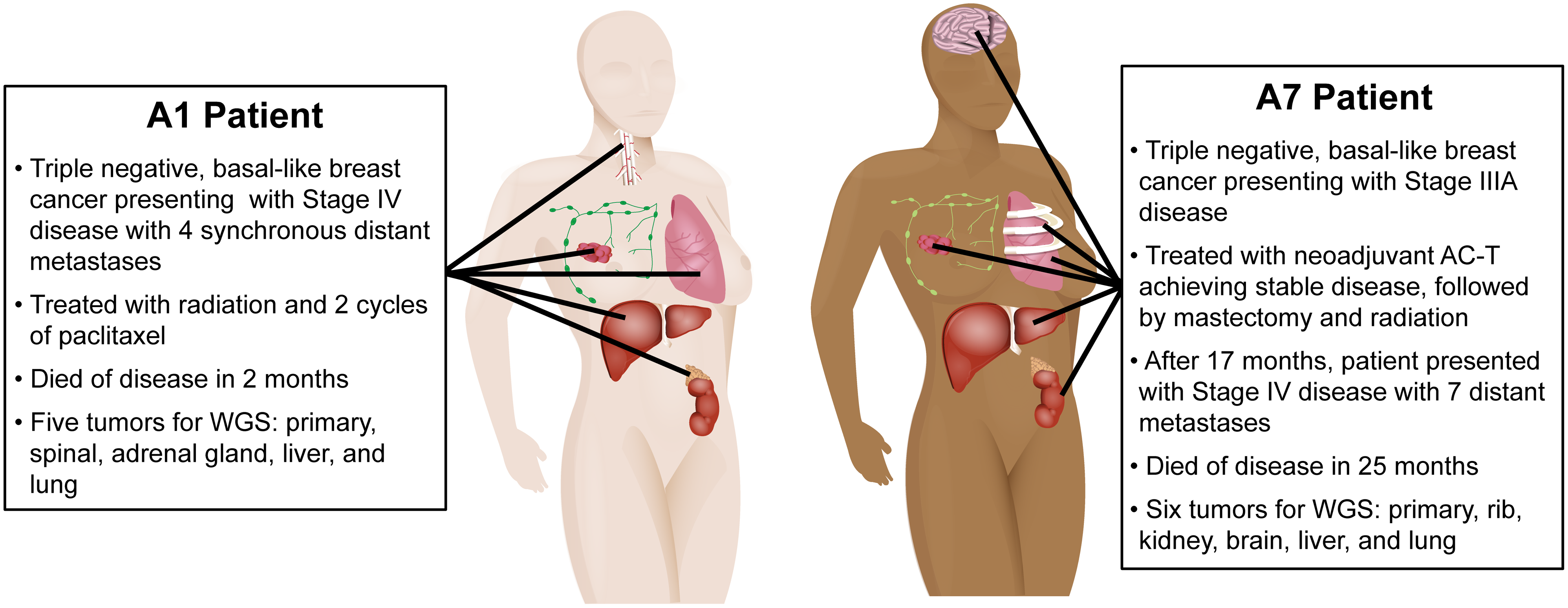 Clinical history and distribution of metastases from patients A1 and A7, who both had clinically triple-negative and basal-like breast cancer.