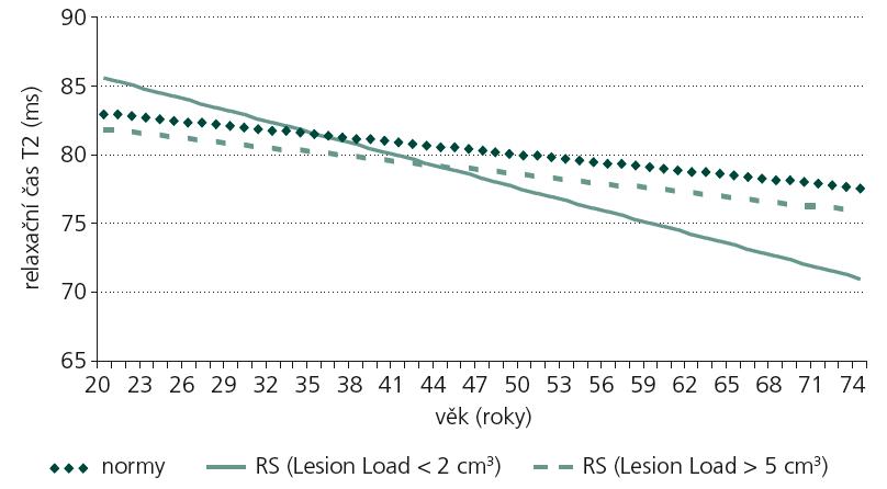 Porovnání T2 relaxačního času u norem, RS (LL < 2 cm<sup>3</sup>) a RS (LL > 5 cm<sup>3</sup>) (levé putamen).