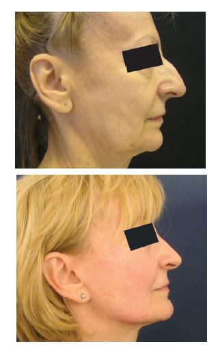Rinoplastika u starší ženy po faceliftingu Fig. 4: Rhinoplasty after facelift surgery in an older female