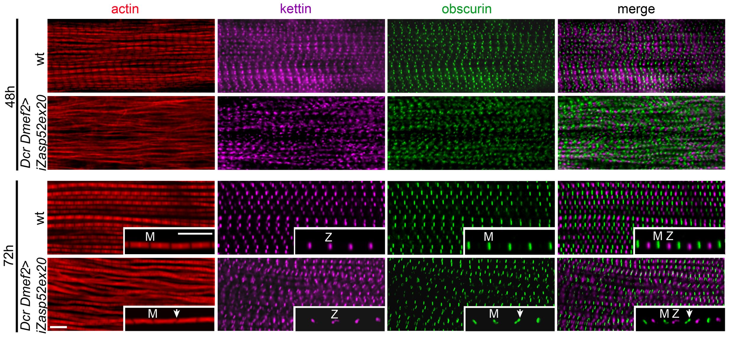 Zasp52 long isoforms are required for pupal myofibril development.