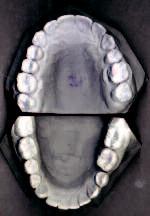 Obr 2b. Ortodontické dokumentační modely po sejmutí pevného ortodontického aparátu.