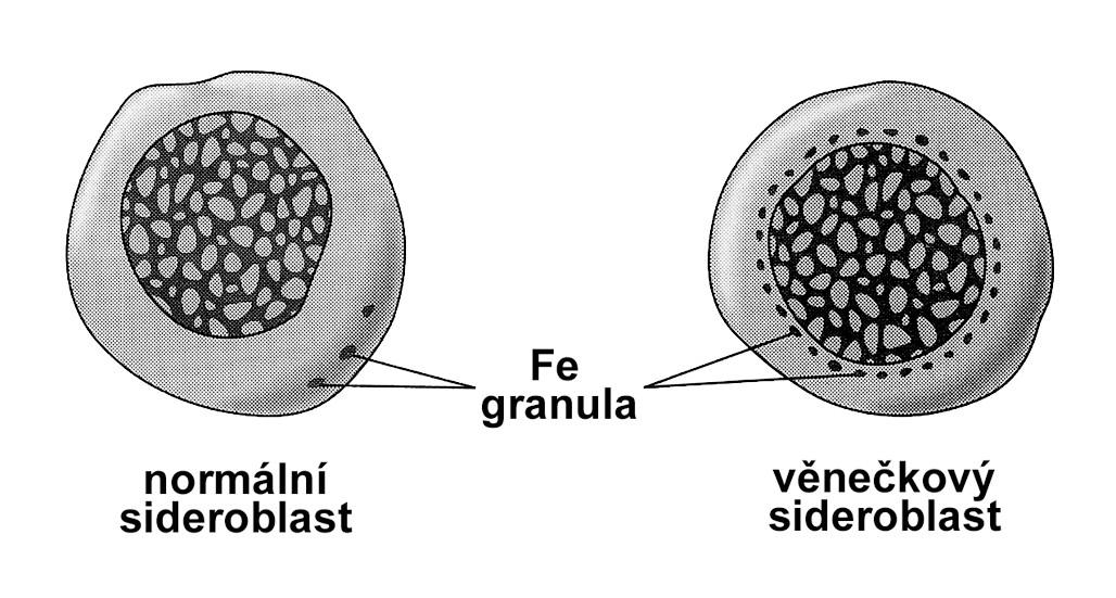Srovnání normálního a věnečkového sideroblastu.