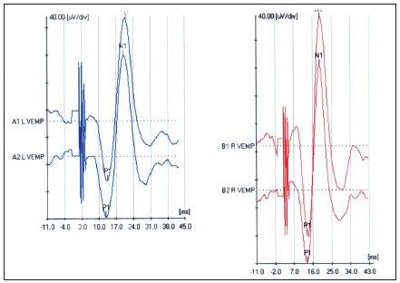 VEMP pri náhlej percepčnej kochleárnej poruche sluchu vpravo.