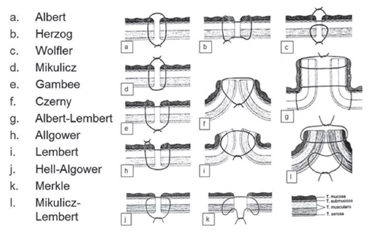 Přehled základních šicích technik při konstrukci střevní anastomózy dle jejich tvůrců