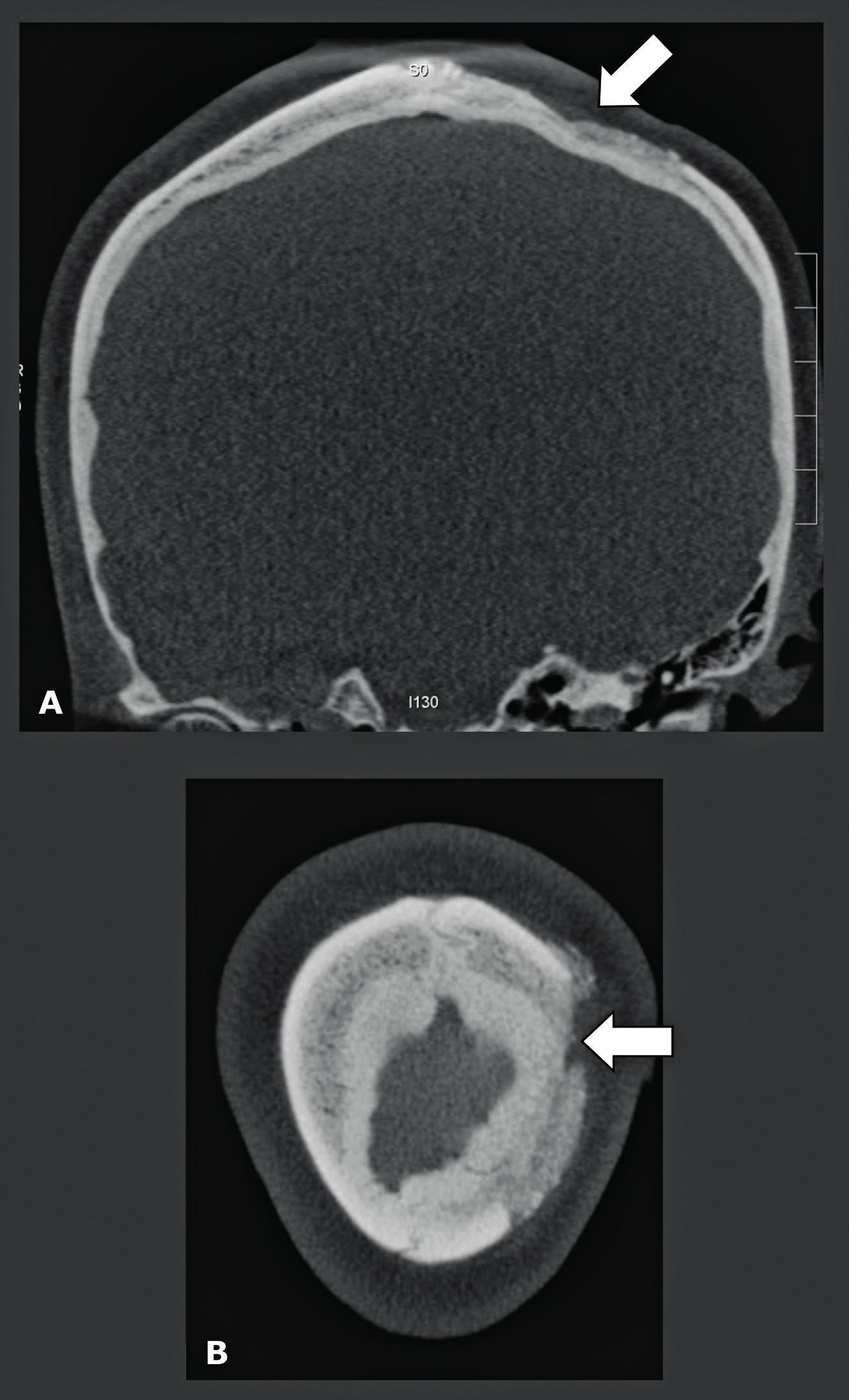 Protokol CBCT u preprotetického snímkování pro kraniální kostní štěp u atrofické maxily. Simultánní CBCT snímkování recipientní lokality maxilárních dutin a odběrového místa na lebce.