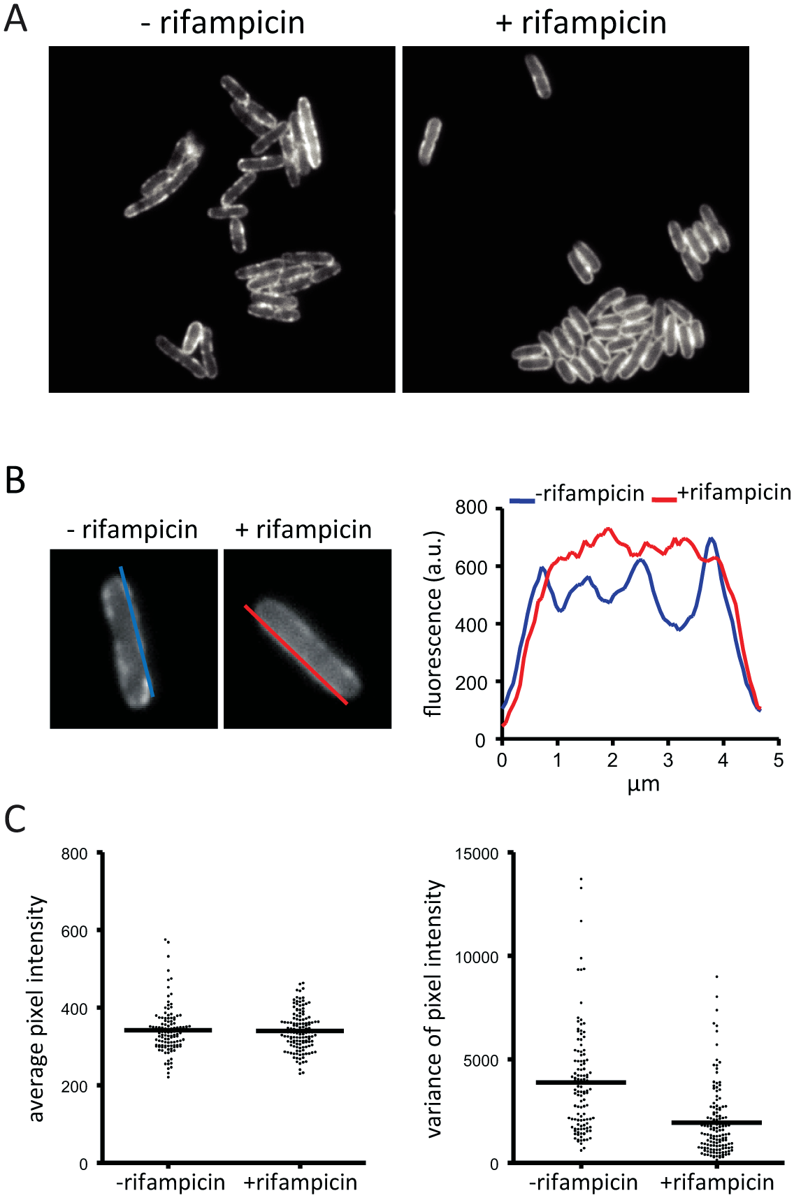 Rifampicin treatment inhibits formation of RNase E foci. Images are of the KSL2000/pVK207 strain, which expresses RNase E-YFP.