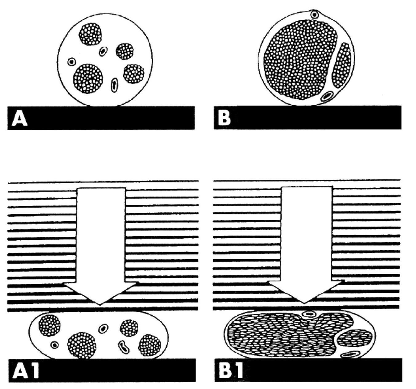 Komprese dvou nervů s rozdílným vnitřním uspořádáním. A – nerv s tenkými fascikly a velkým množstvím vazivové tkáně, B – nerv s velkými fascikly a malým množstvím vazivové tkáně. Při kompresi nervu (A1) se mění nerv deformací vaziva a změnou polohy fas