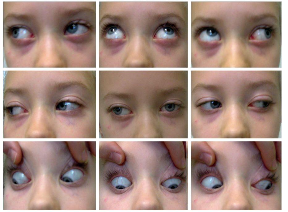 Osmiletá pacientka – rozbor motility ve všech pohledových směrech u strabismu sursoabduktoria