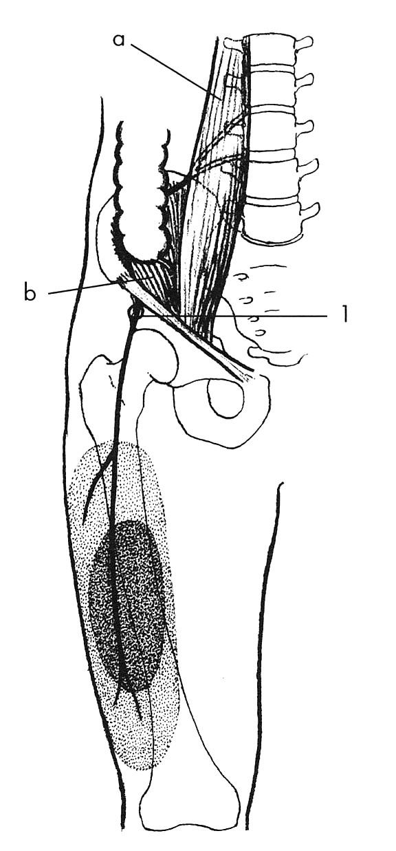 N. cutaneus femoris lateralis Nejčastější lokalizace lézí nervů je při průstupu pod tříselným vazem; 1 – svaly: a – m. psoas major, b – m. iliacus. Vytečkovaná oblast vyznačuje poruchu čití.