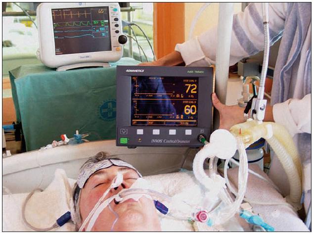 Ilustrační fotografie pacienta s aplikovanou měřicí sondou a monitorem INVOS při oboustranném kontinuálním sledování regionální cerebrální saturace (rSO<sub>2</sub>).