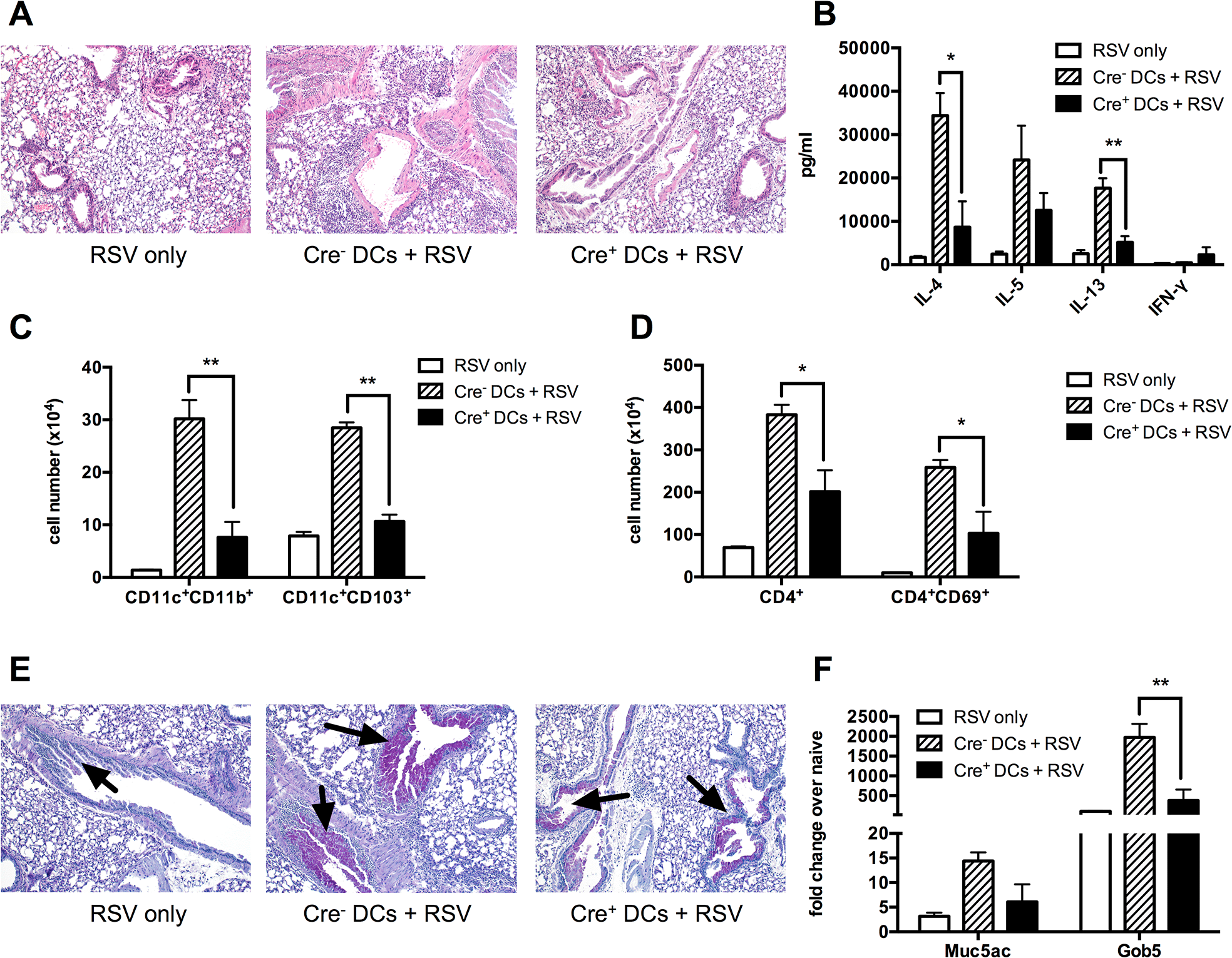 Sensitizing the lungs with <i>Kdm5b</i><sup>f/f</sup>-CD11c-Cre<sup>+</sup> DCs prior to infection results in decreased pathology following RSV challenge.