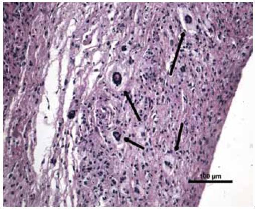 Barvení hematoxylin-eozin, původní zvětšení 200krát. Vazivová tkáň se zánětlivou infiltrací histiocyty a charakteristickými obrovskými mnohojadernými buňkami Toutonova typu (šipky).