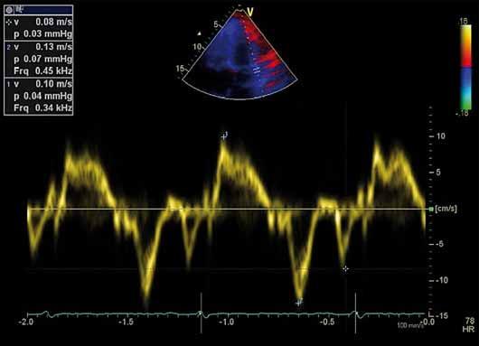 Záznam pohybu mitrálního anulu tkáňovou dopplerovskou echokardiografií, fyziologický nález.