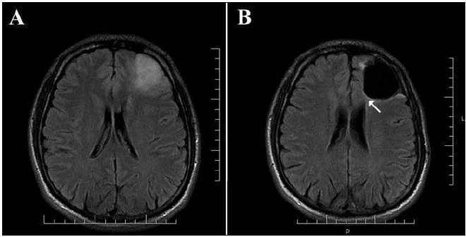 Obr. 2a. Pacient č. 9. Predoperačné MR vo FLAIR sekvencii zobrazujúce oligodendroglióm gyrus frontalis medius. Obr. 2b. Pooperačné MR vo FLAIR sekvencii zobrazujúce radikálnu resekciu nádoru (hyperintenzívny lem na okraji resekčnej dutiny je pooperačná glióza, nachádza sa mimo miest, kde bolo hyperintenzívne tkanivo predoperačne). Šípka – časť fasciculus subcallosus pri prednom rohu ľavej bočnej komory.
