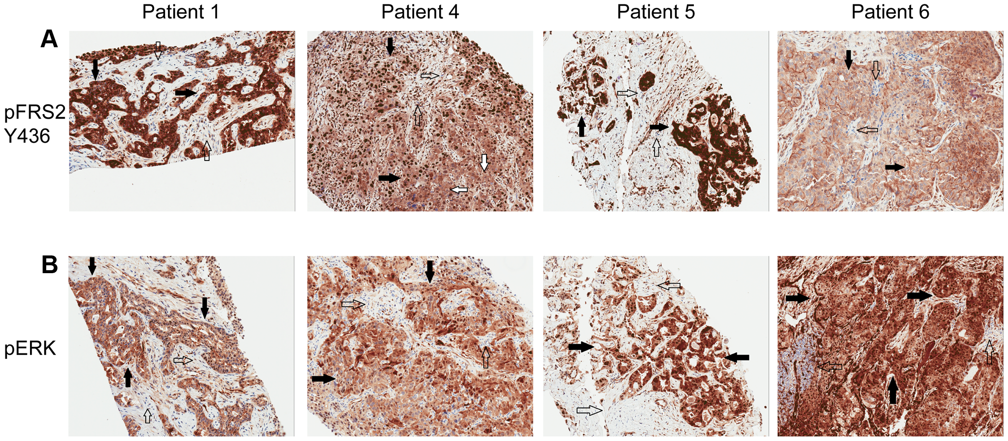 Immunohistochemistry demonstrating pFRS2 Y436, and pERK expression in Patients 1, 4, 5 and 6.