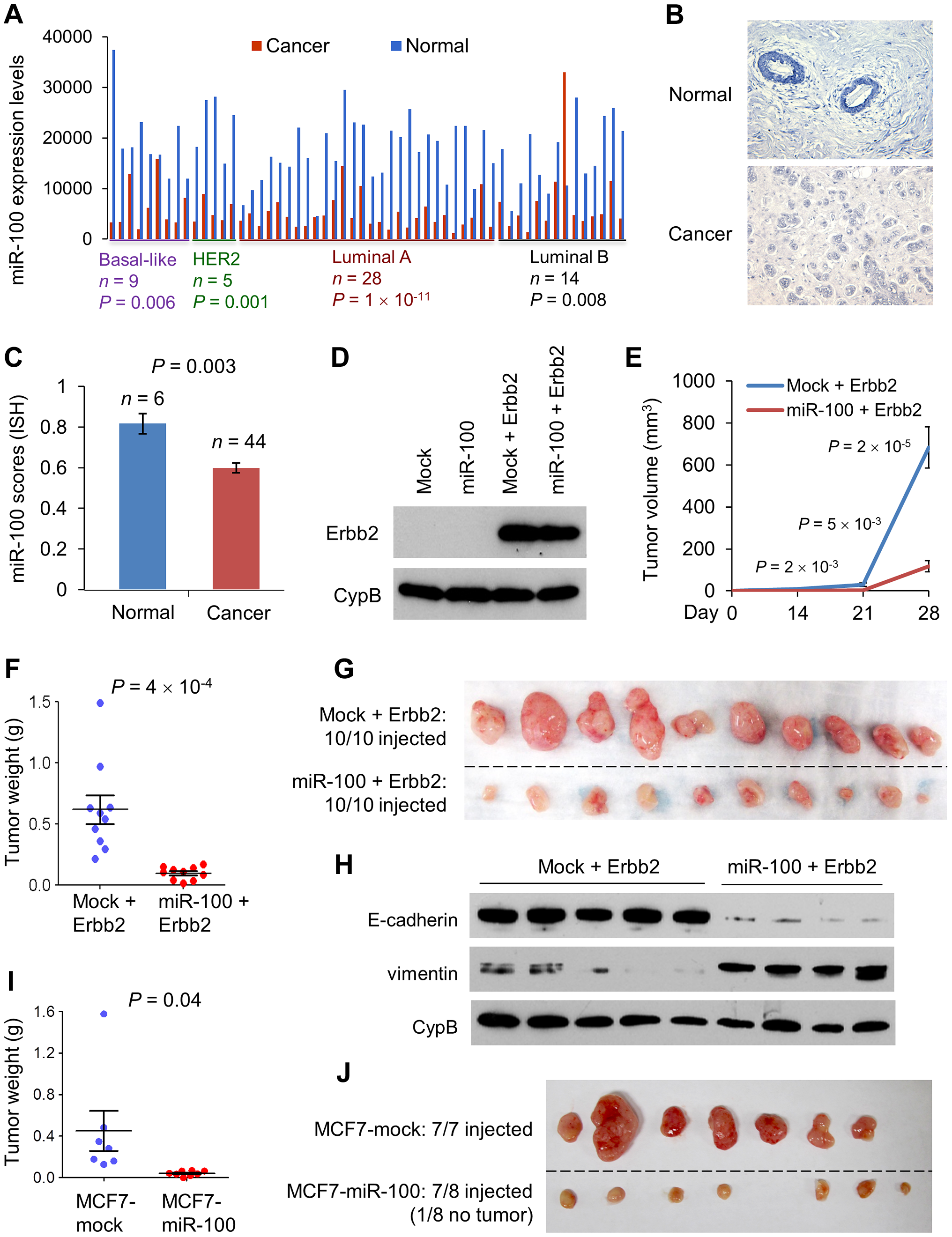 miR-100 inhibits tumorigenesis and is downregulated in human breast cancer.