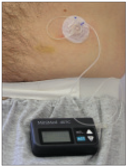 Aplikační systém pro kontinuální subkutánní léčbu treprostinilem.