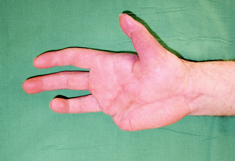 Fig. 6. Status of the hand after 3 years – extension of fingers
