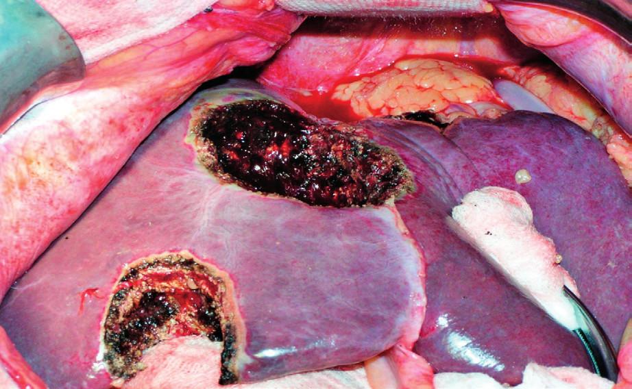 Stav po metastasektomii jater – 2krát neanatomická resekce