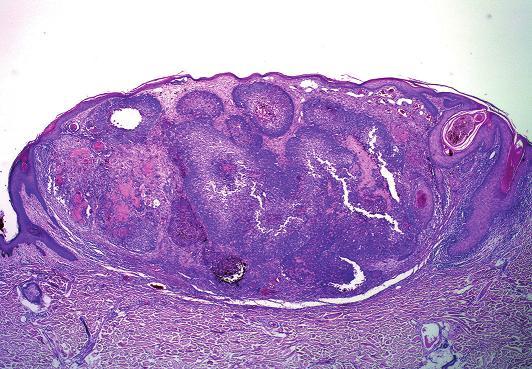 Melanocytární matrikom: solitární nádorový uzel vyklenuje atrofickou epidermis, avšak nesouvisí s ní (HE, původní zvětšení 25x).