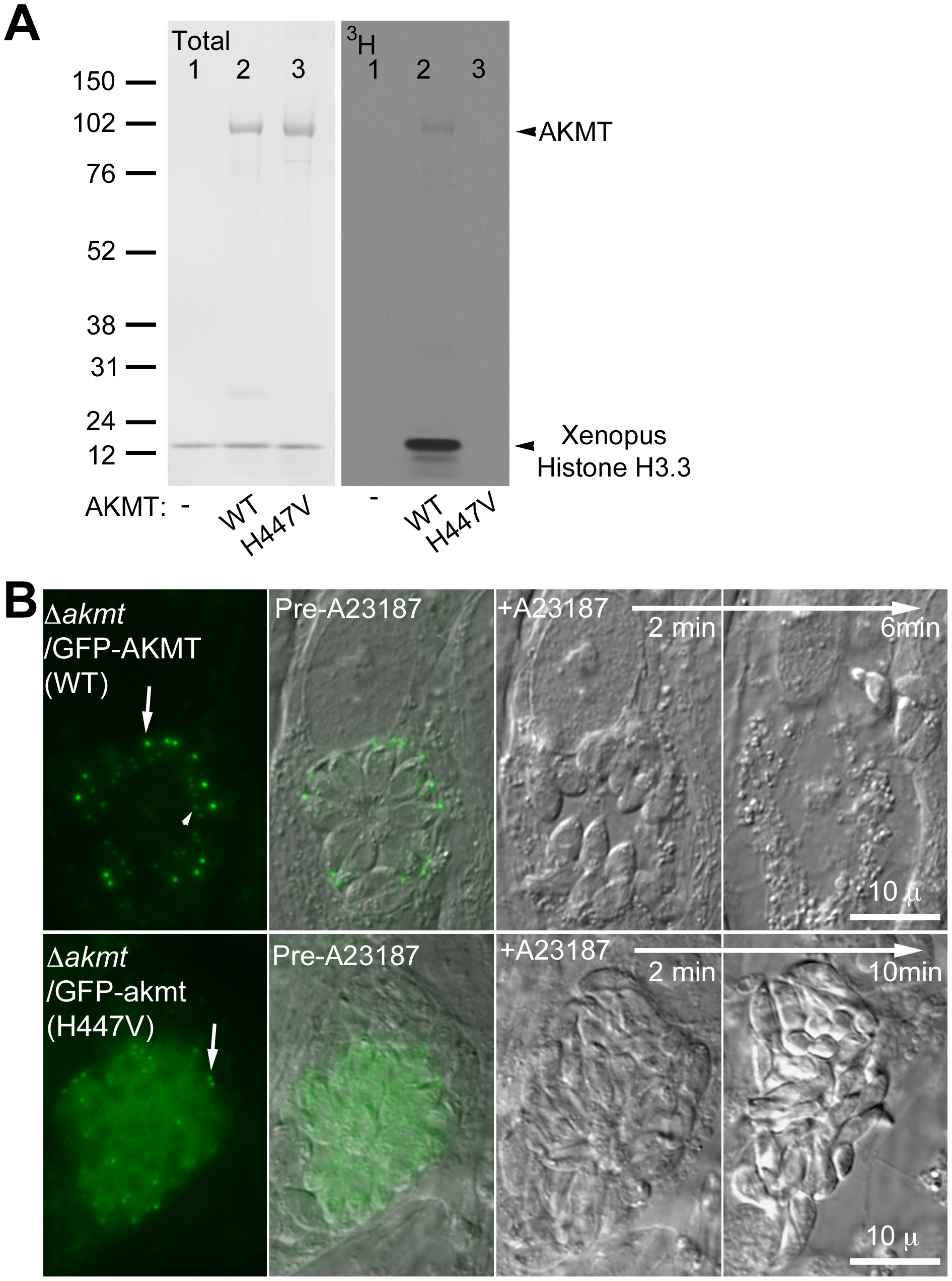 The lysine methyltransferase activity of AKMT is required for its function.