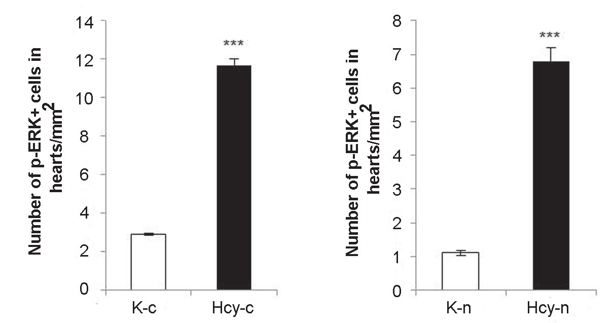 Fig. 2. Comparison of numbers of p-ERK positive cells with cytoplasmic (c; left) and nuclear (n; right) co-localisation in control (K) and hyperhomocysteinemic group (Hcy). ***P<0,001 means statistically significant difference as compared to the controls.