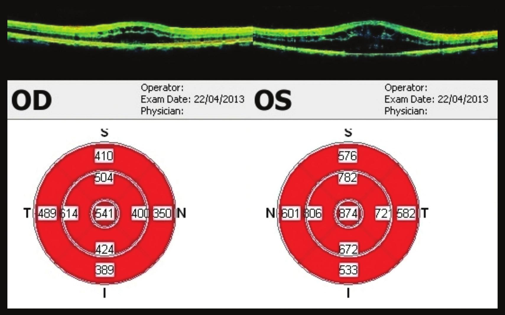 OCT makul 22 týdnů od prvního vyšetření Progrese nálezu – výrazná cystoidní přestavba, ve fovee 541 μm na OP, na OL 874 μm. Pacient indikován k aplikaci bevacizumabu do OP