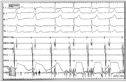 RFA WPW syndromu, akcesorní spojky levé laterální. Během aplikace RF energie, dochází k přerušení vodivosti akcesorní dráhy, na povrchovém EKG vymizí δ vlna, normalizuje se PQ interval. V koronárním sinu – CS 1,2 je odskok síňového a komorového potenciálu. HRA – horní pravá síň, HBE – potenciály z Hisova svazku, CS – koronární sinus, USER – ablační katetr.