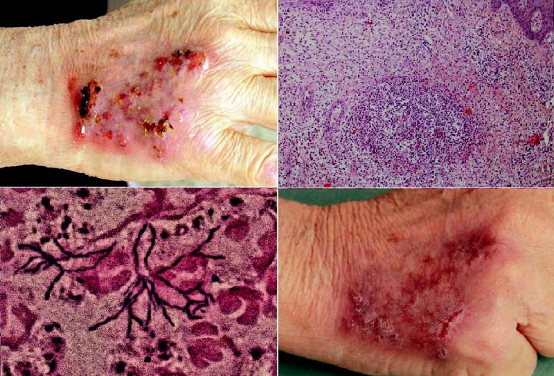 Obr. 1. Pacient č.1: a) dorsum pravej ruky – pred liečbou, b) prekrvácaný drobný abces vkóriu, farbenie HE, zväčšenie10x, c) mikroskopický obraz aktinomykotických elementov, farbenie Gram (dodal MUDr.Ružička), d) dorsum pravej ruky – po  4 týždňoch liečby.