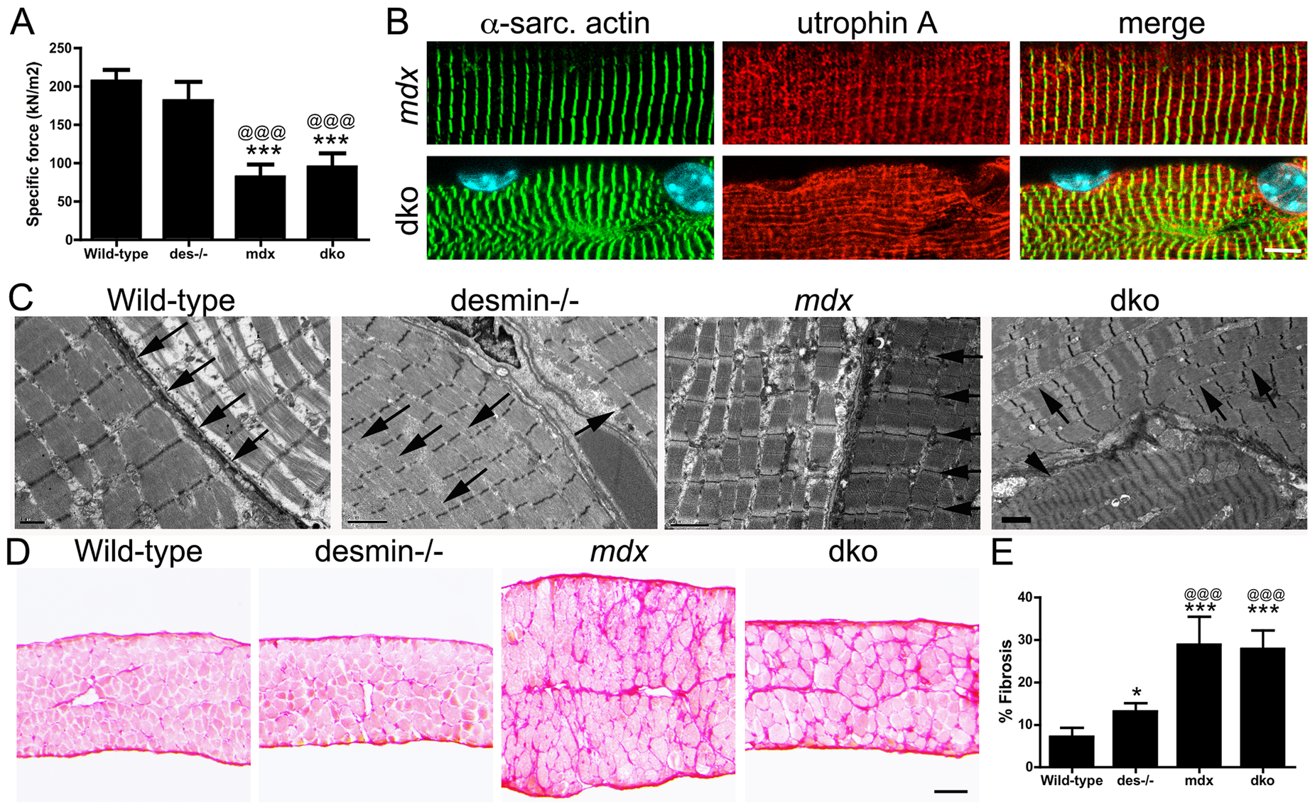 Impaired diaphragm function in the dko correlates with loss of sarcomere alignment and deposition of collagen.