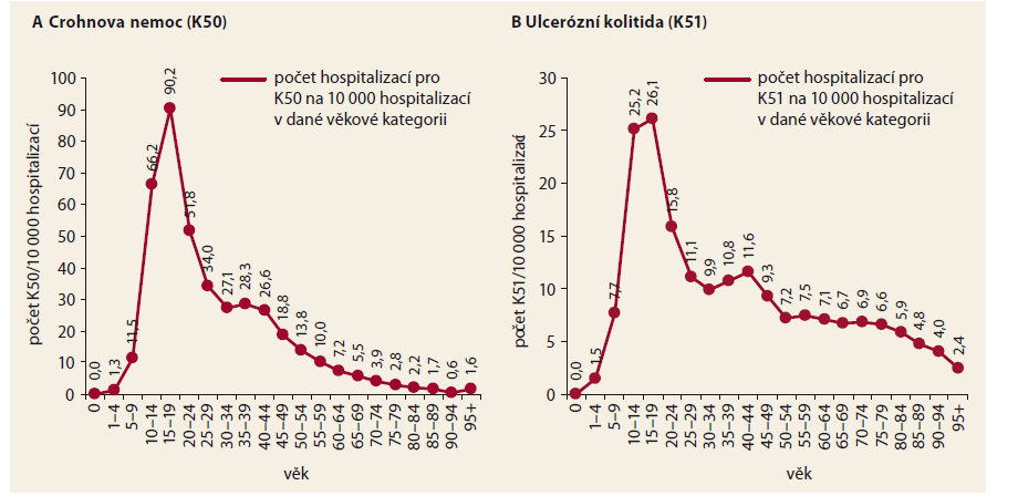 Počet hospitalizací pro léčbu IBD v jednotlivých věkových kategoriích. A. Věkově specifický počet hospitalizací pro Crohnovu nemoc (K50) na 10 000 hospitalizací, B. věkově specifický počet hospitalizací pro ulcerózní kolitidu (K51) na 10 000 hospitalizací. Graph 2. Number of hospitalizations for IBD by age categories of patients. A. Age-specific number of hospitalizations for Crohn's disease (K50) per 10,000 hospitalizations, B. age-specific number of hospitalizations for ulcerative colitis (K51) per 10,000 hospitalizations.