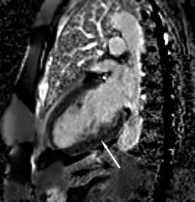Zobrazení magnetickou rezonancí Rozvláknění spodní stěny po aplikaci kontrastní látky.