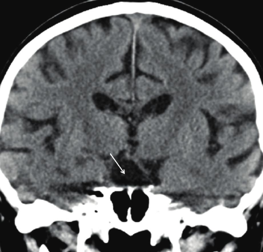Kontrolní CT před plánovanou operací u prezentovaného nemocného, patologická expanze tureckého sedla není patrná