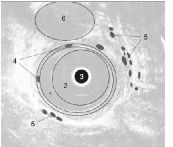 Schéma EUS obrazu jícnu: 1. lumen jícnu, 2. balonek endosonografu, 3. endosonografická sonda, 4. intramurální varixy, 5. paraezofageální varixy, 6. aorta.