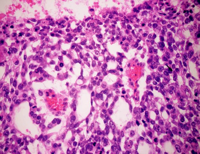 Charakteristické Schillerové-Duvalové telieska v hepatálnom YST (HE, zväčšenie 600x)