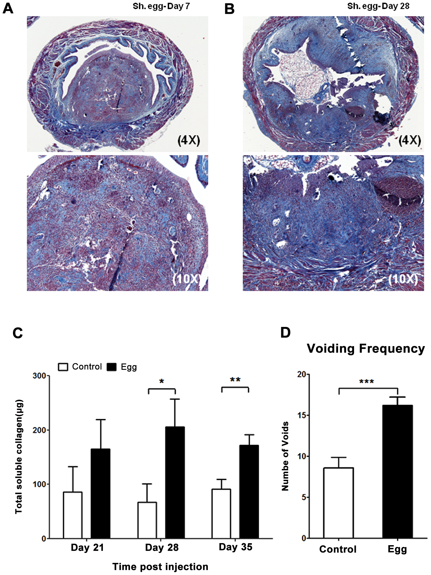 <i>S. haematobium</i> egg-injected bladders develop fibrosis and urinary dysfunction.
