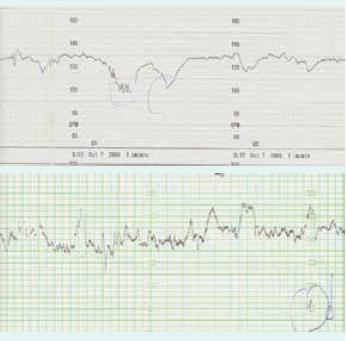 CTG-záznam hydropického plodu před a po transfuzní léčbě
