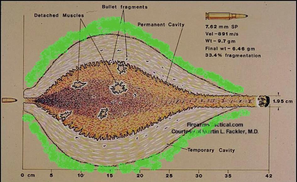 Jednotlivé oblasti střelné rány (zeleně označena zóna molekulárního otřesu)