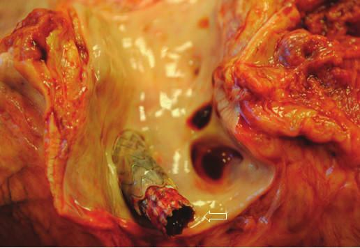 Sekční nález. − průchodný TIPS v portálním řečišti Fig. 6: Autopsy fading − unobstructed TIPS in portal venous system